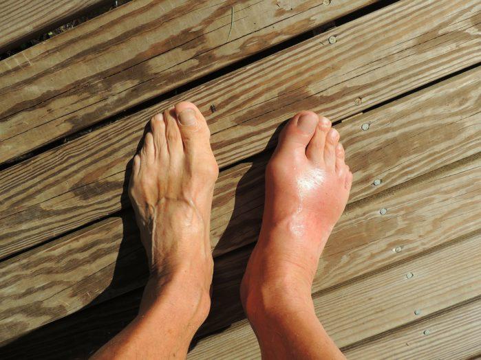 foot health in the elderly